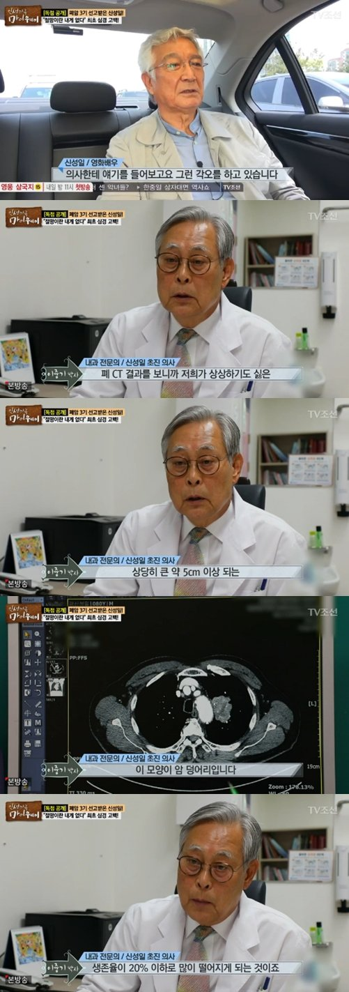 """Shin Seong-il's doctor, """"Cancer mass over 5 cm"""", """"Less than 20% chance of surviving"""""""